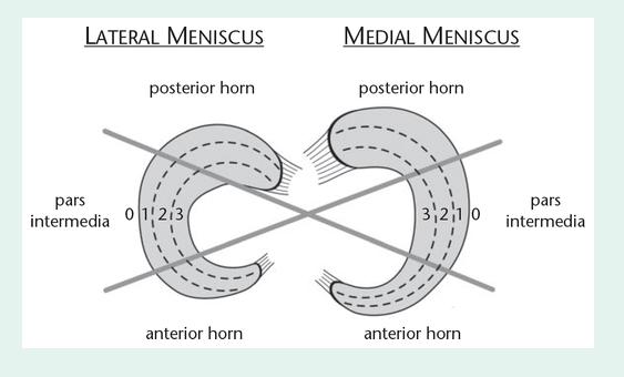 Meniscus Treatment