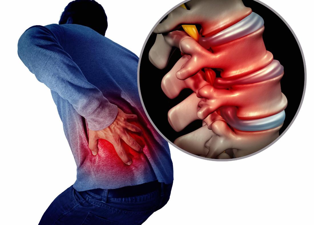 back pain in Selden